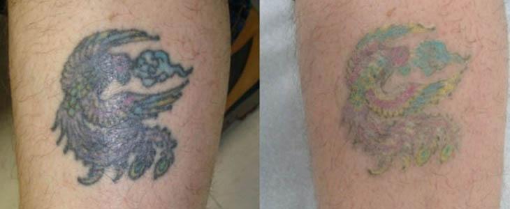 Rimozione tatuaggio calore