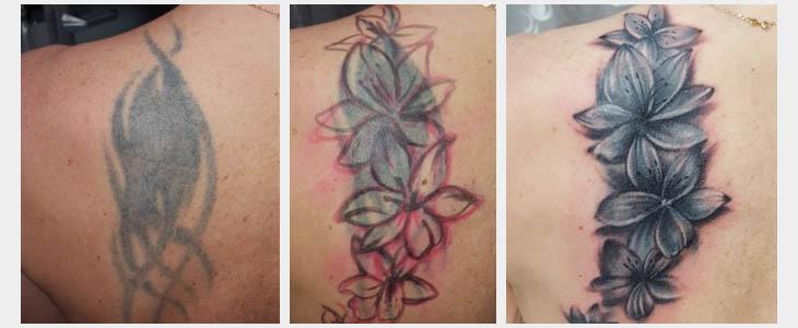 Rimozione tatuaggio coverup