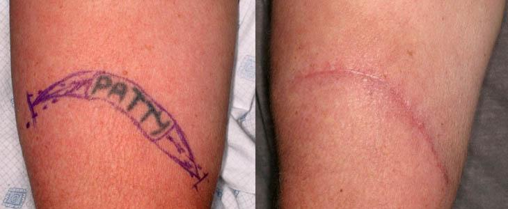Rimozione Tatuaggio Escissione chirurgica