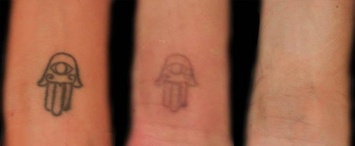Rimozione tatuaggio prima e dopo